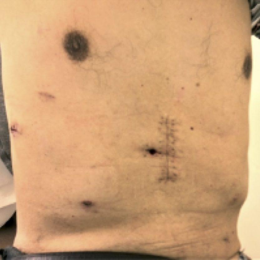胸腹腔鏡手術後