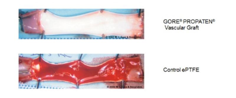 ヘパリン結合型ePTFE性人工血管(上段)と旧人工血管との比較