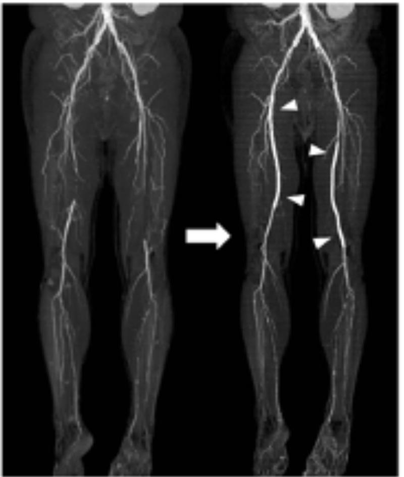 浅大腿動脈に対するステント留置