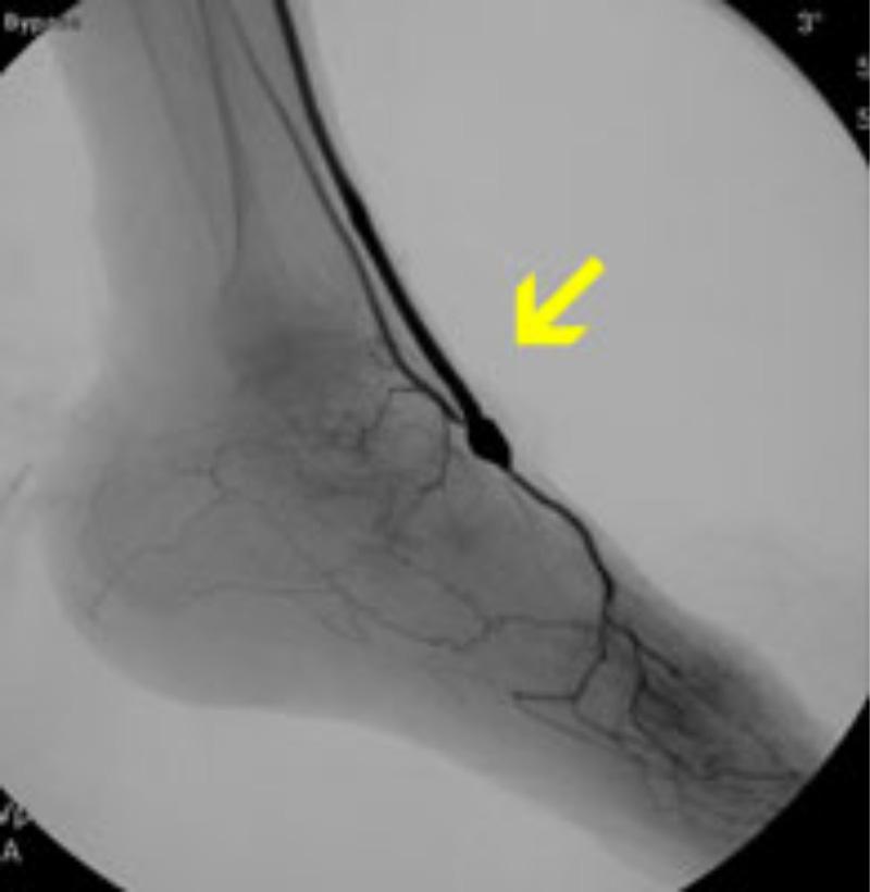 足背動脈へのバイパス術