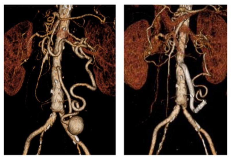 下腸間膜動脈瘤に対するステントグラフト治療