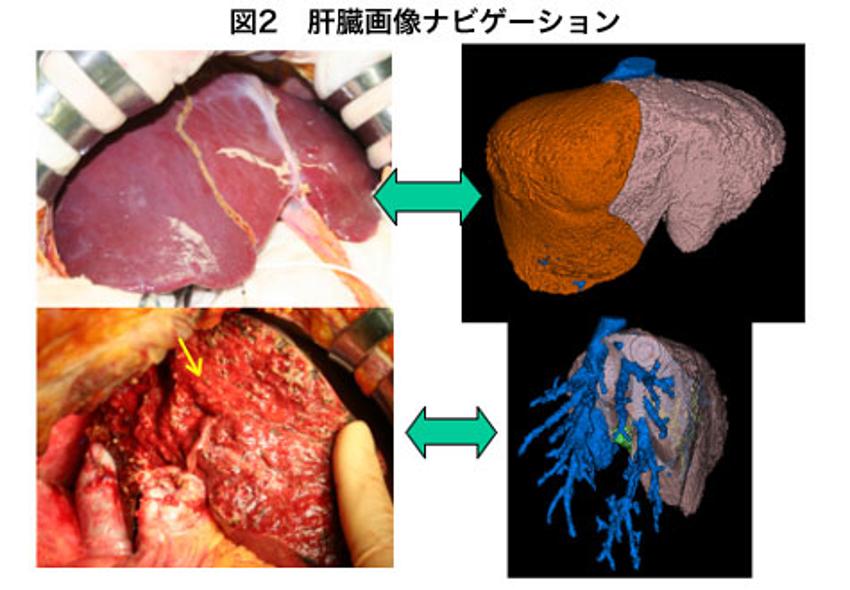 肝臓画像ナビゲーション
