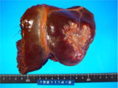 肝内胆管癌(胆管細胞癌)の治療3