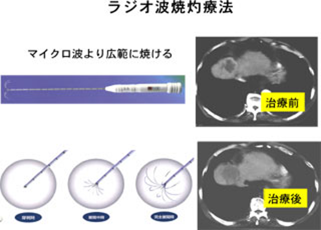 ラジオ波焼灼療法(RFA:radiofrequency ablation therapy)