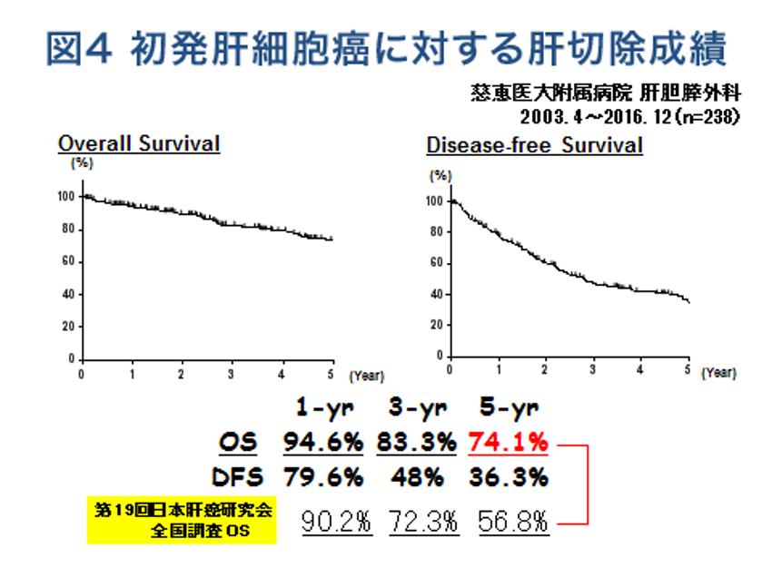 図4 初発肝細胞癌に対する肝切除成績