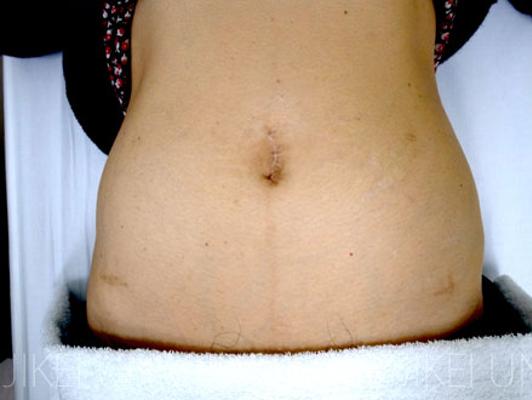 腹腔鏡手術症例数