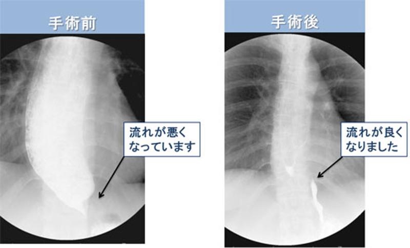 アカラシアの手術前と手術後のバリウム検査の様子。フラスコ型,||度。