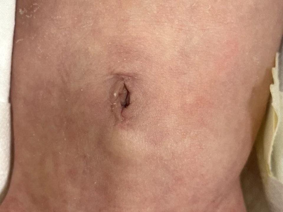 十二指腸閉鎖術後(手術創は臍のみ)