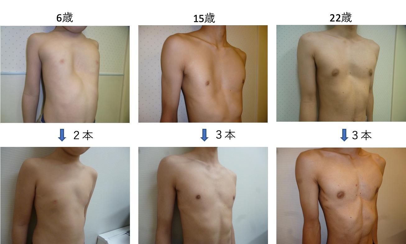 漏斗胸 治療と効果